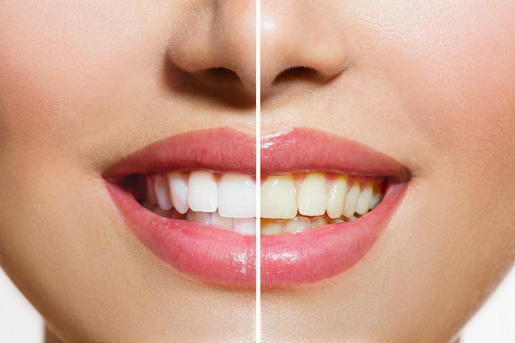 teethwhiteningDIY